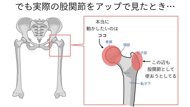 バレエで股関節が硬い意外な理由 2