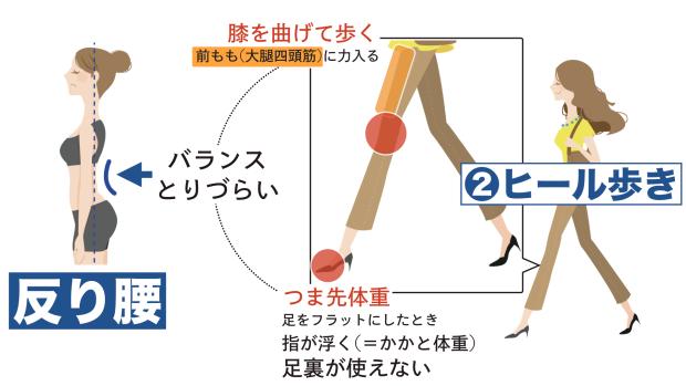 原因②ヒール歩き(膝曲げてつま先体重)